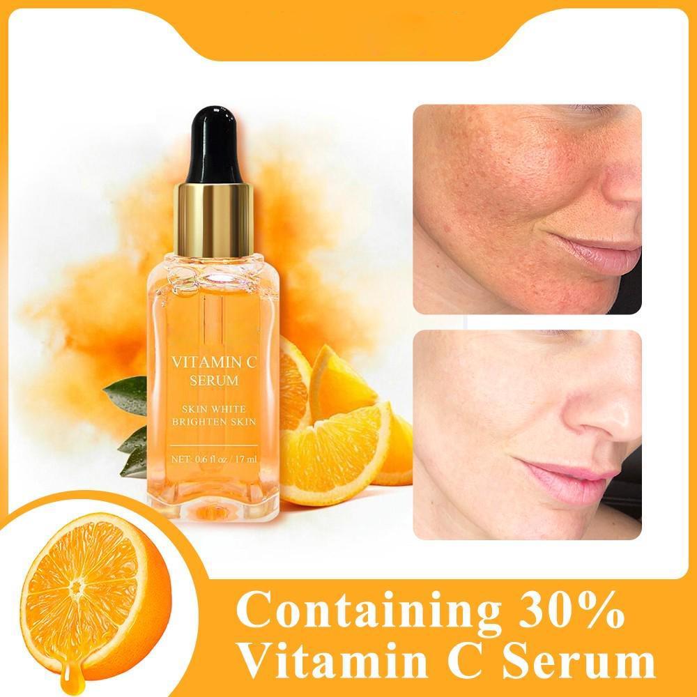 ser vitamina c acnee