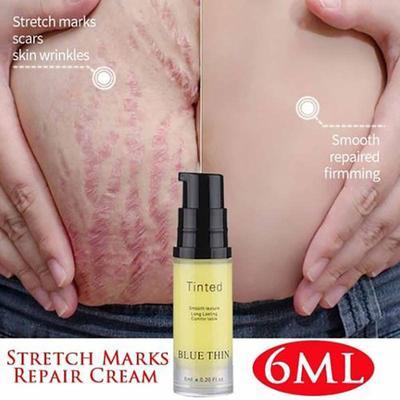 Women Remove Stretch Marks Cream Fat Scar Striae Gravidarum Reduce Skin Care Essential Cream