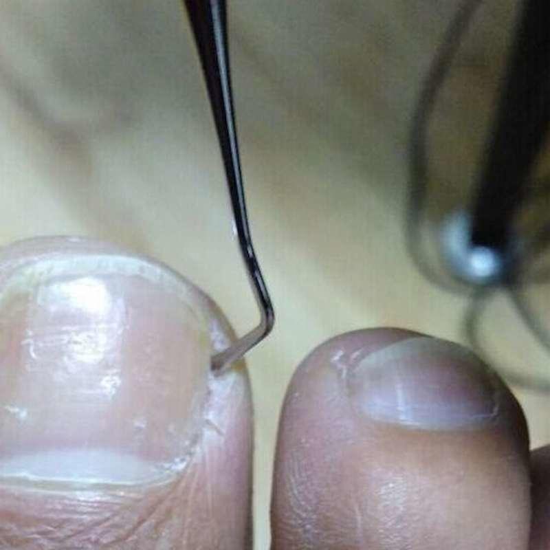 100% nuevo 1pc dos extremos encarnadas levantador de la Lima de uñas ...