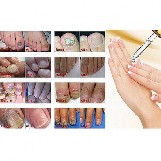 Nail Regeneration Nails Care Polish Oil Gel Fungus Onychomycosis ...