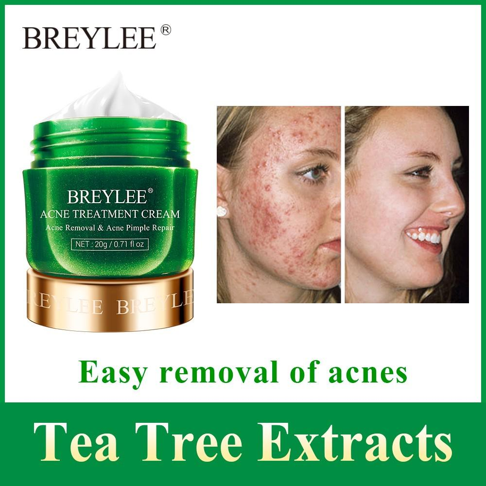 Breylee Acne Face Cream Pimple Removal Spots Oil Control Shrink