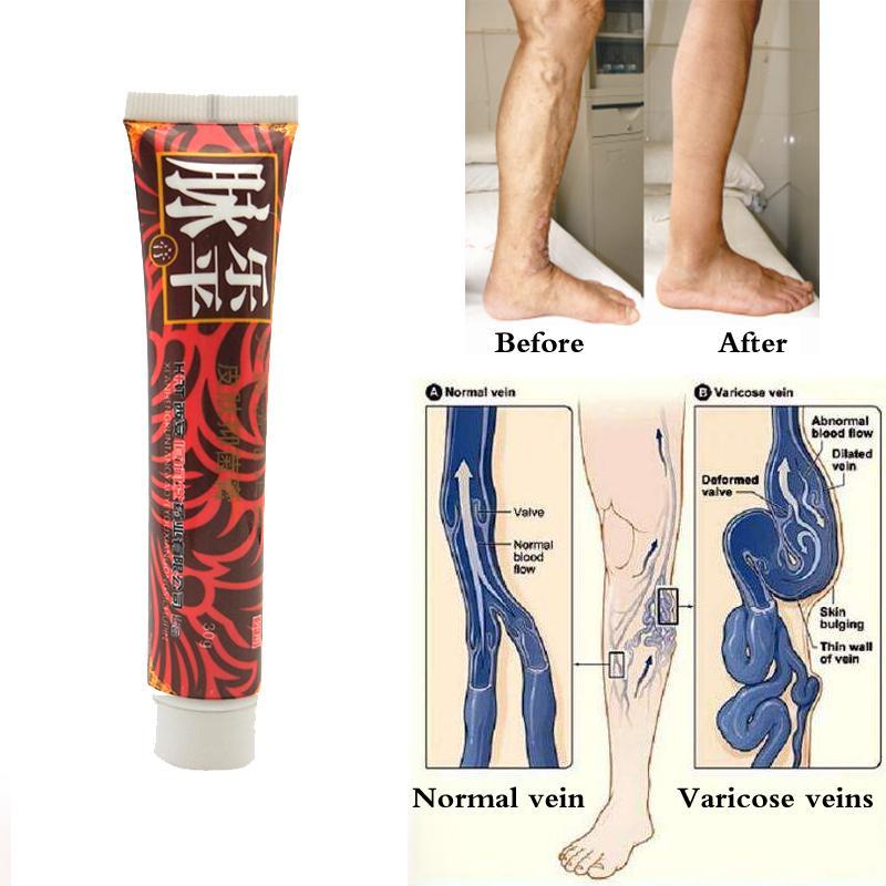 picior varicos ceea ce este frică prețurile de compresie în varicoză
