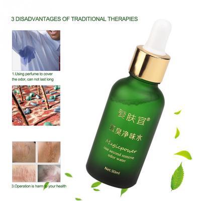 1 Pc Natural Water Bromhidrosis Foot Odor Antiperspirants