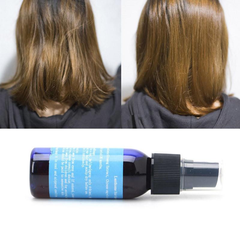 Schönheit & Gesundheit Haar Wachstum Flüssigkeit Spray Alopezie Pilatory Anti Haarausfall Von Nachwachsen Der Haare 30 Ml