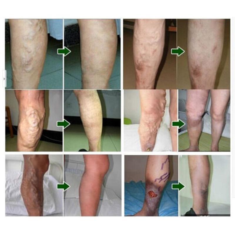 noduli pe picioarele varicozei)