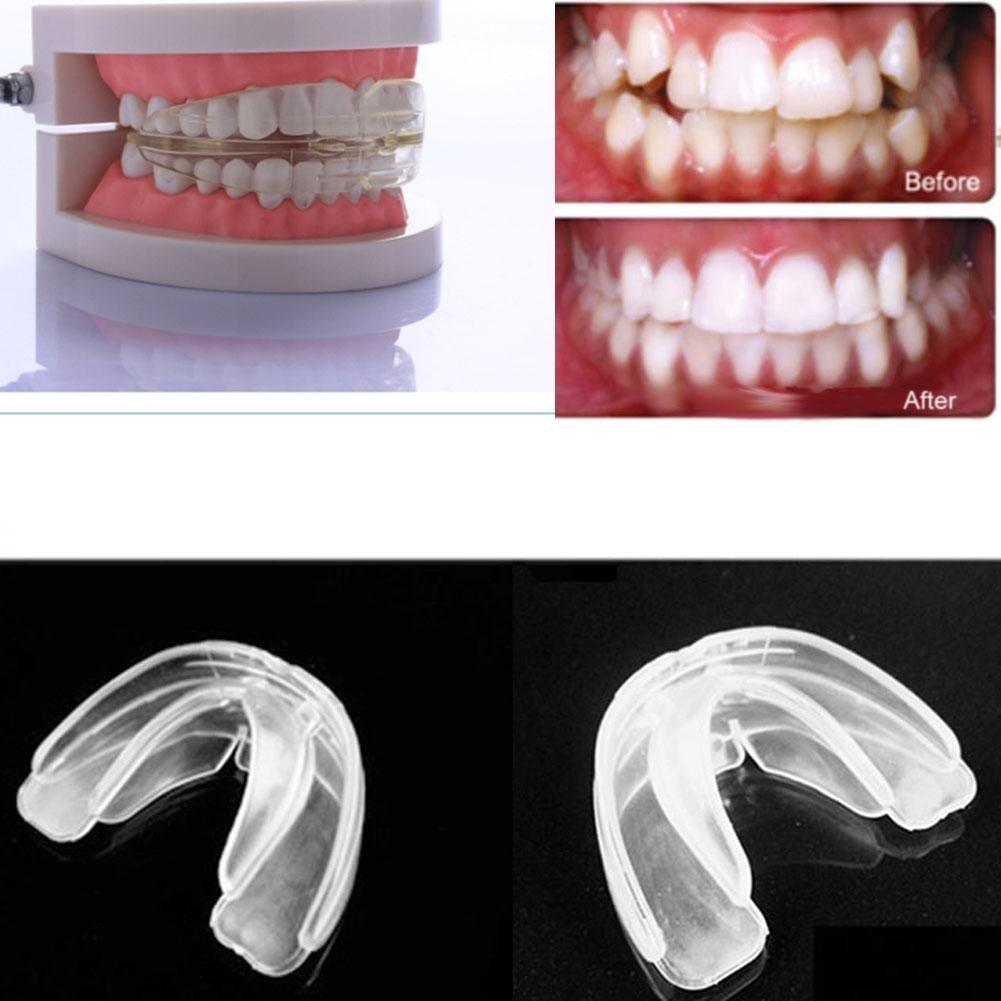 Orthodontic Straight Teeth System Teens & Adult / A retainer+Box-buy at a low prices on Joom e-commerce platform