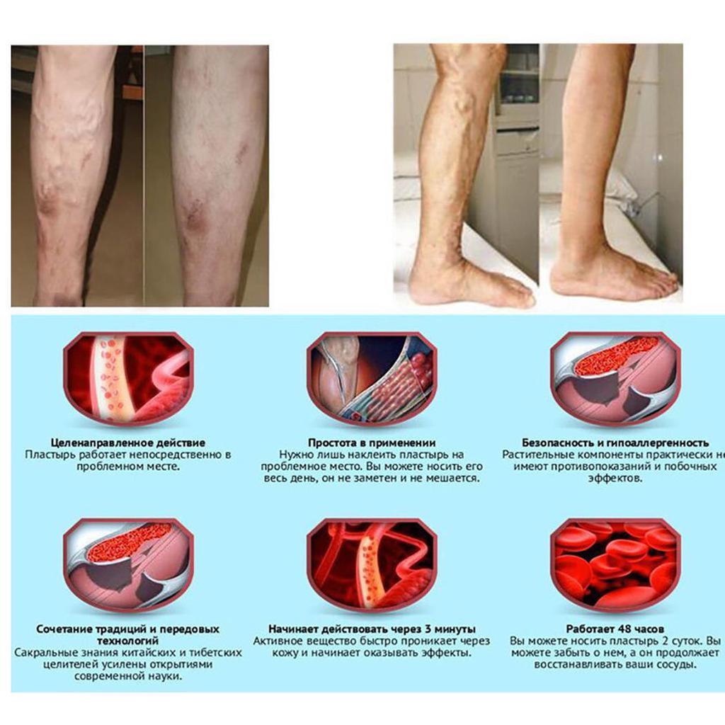 patch-uri de la vasculită varicoză