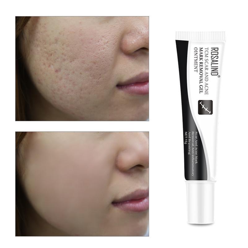 Rosalind Scar Acne Mark Remove Anti Inflammatory And Repair Skin