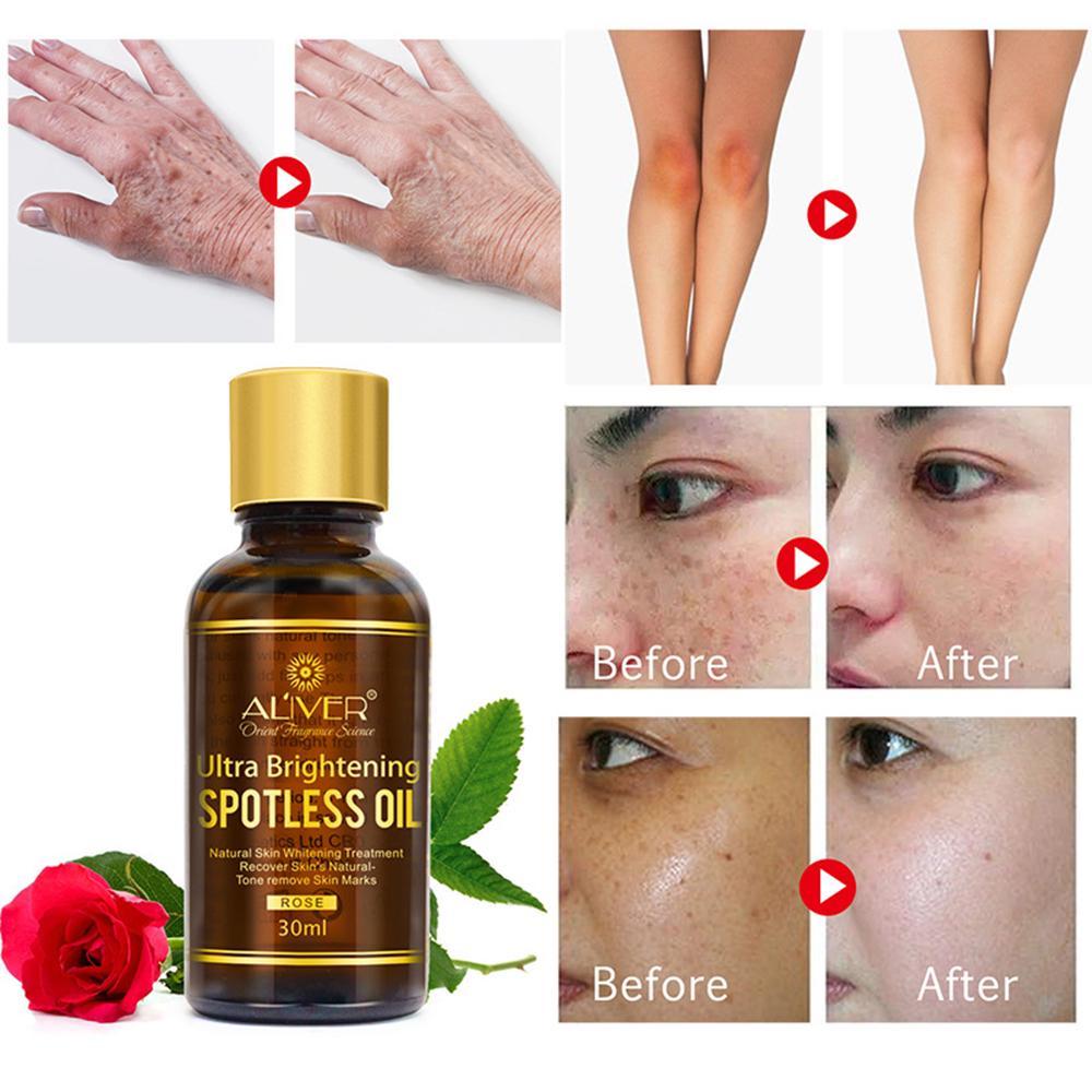 Brightening Repair Whitening Skin Care Facial Essential Massage Oil Rose  Essential Oil