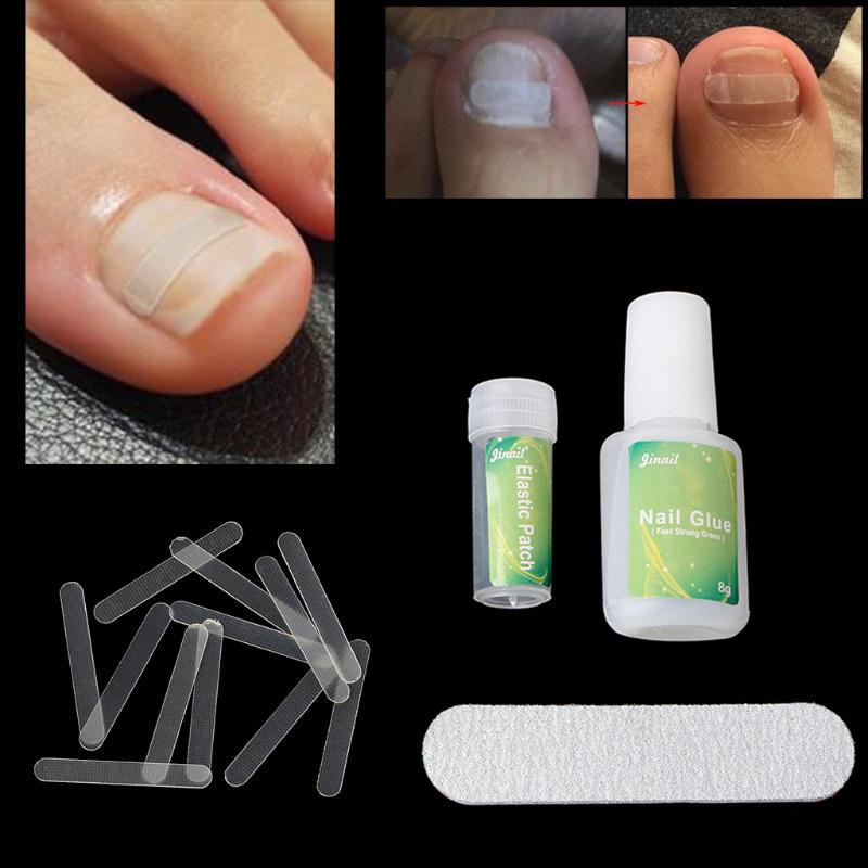 Вросшего ногтя, выпрямление клип коррекции паронихии изогнутые ноги уход инструмент фото