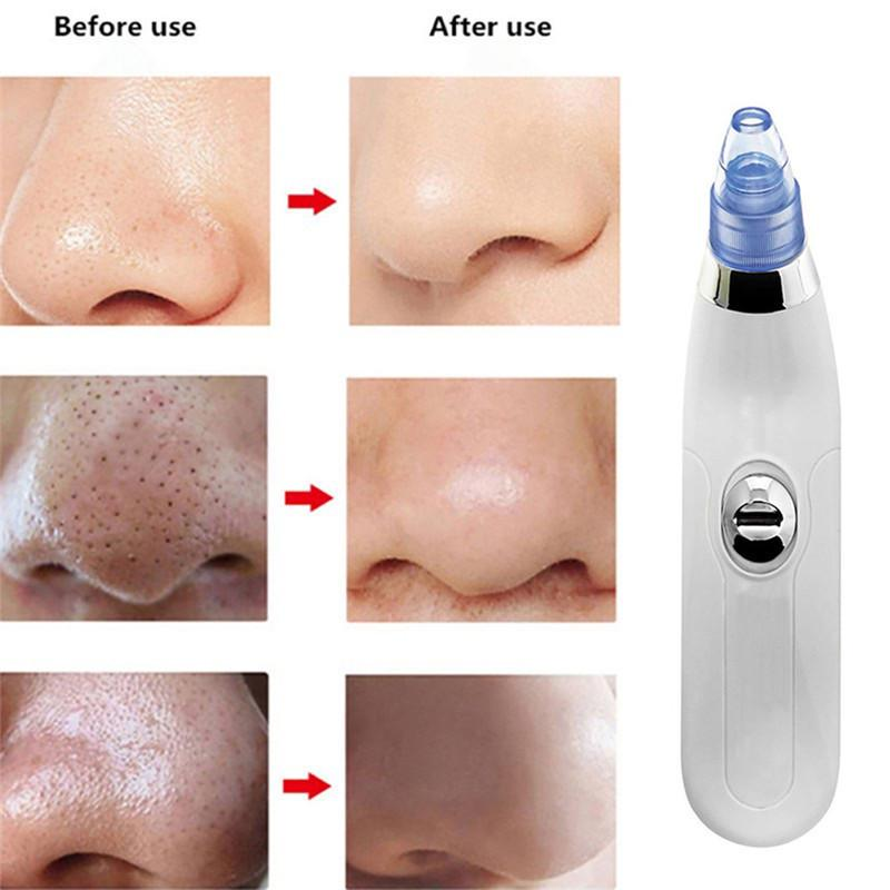 Pro Vacuum Pore Cleaner Blackhead Remover Electric Acne Clean Facial  Exfoliating Cleansing Suction-buy at a low prices on Joom e-commerce  platform
