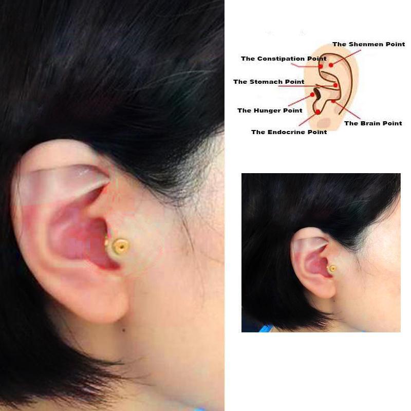 orecchini digitopressione per dimagrire