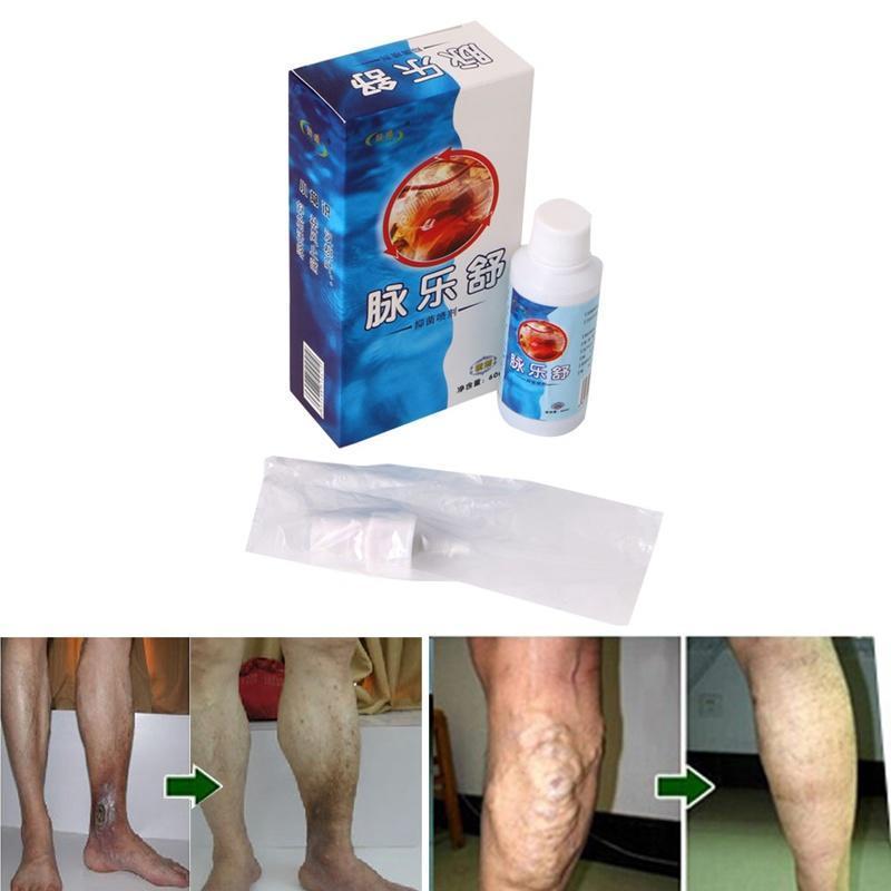 picioare puternice de mâncărime în varicoză