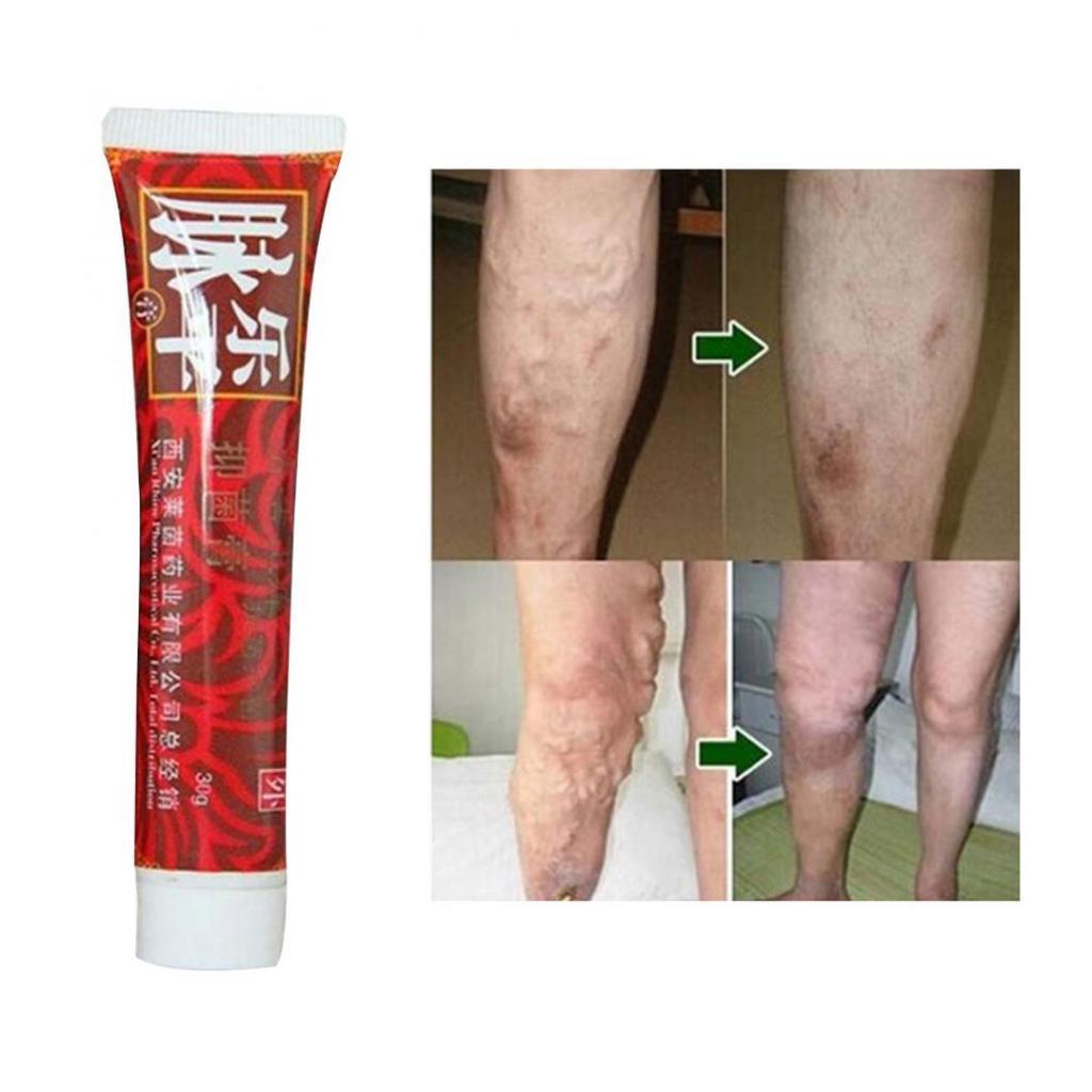 picioare ieftine unguent de la varicoză medicină populară și varicoză